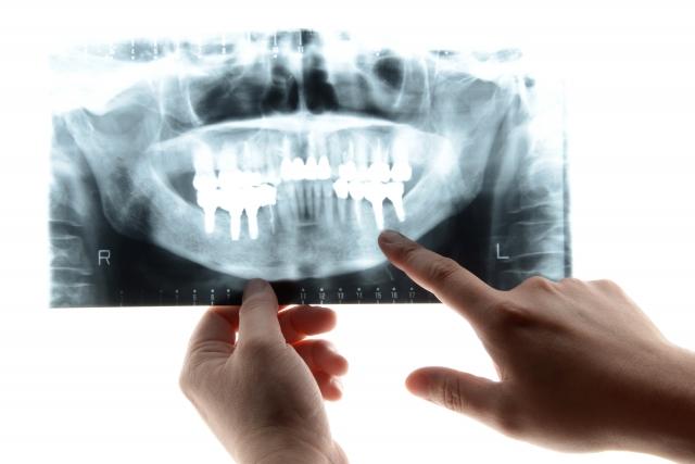 トラブル続出!ブラック歯科医院の見分け方