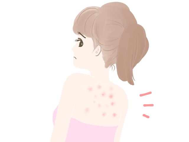 背中ニキビの正体はマラセチア菌という肌カビだった!?原因と対処法をわかりやすく解説します